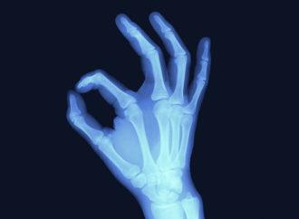 Contro l'osteoporosi la migliore arma è… l'attacco!